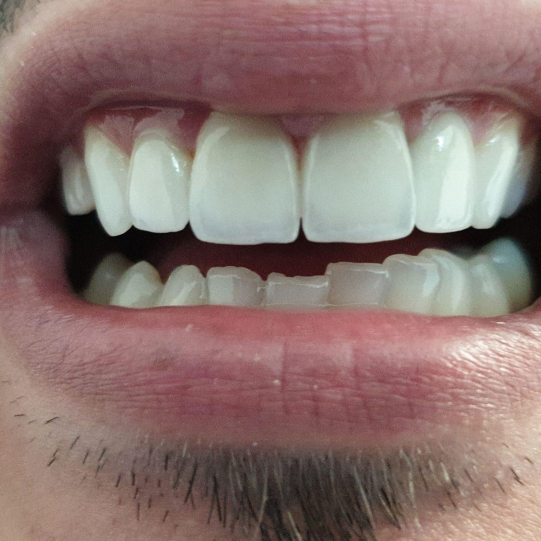 fatete dentare cluj
