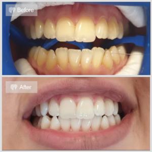 Albire Dentara - Cluj Empire Dental