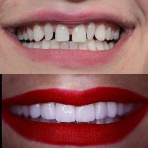 fatete dentare emax