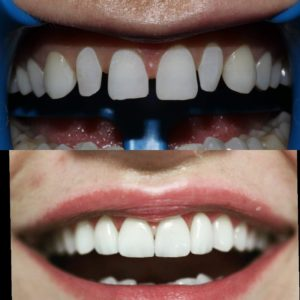 fatete dentare emax cluj