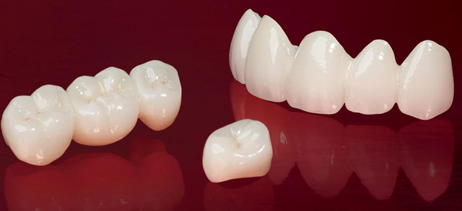 coroana ceramica dentara cluj