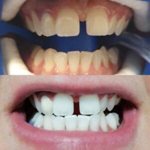 albire dentara cluj